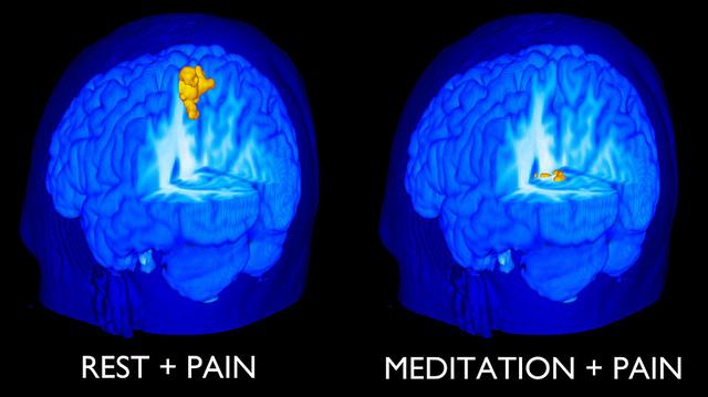 meditationvpain